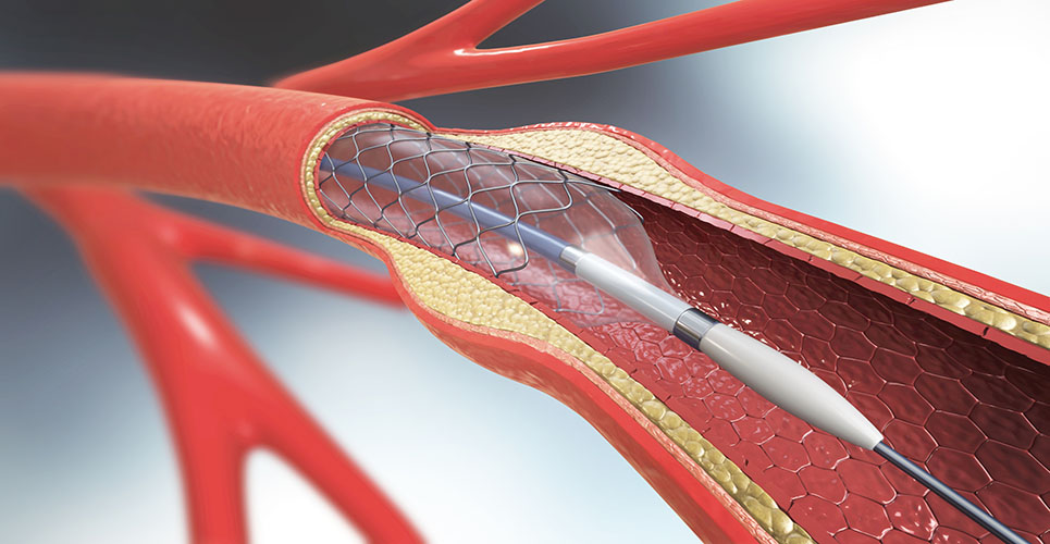 GP antagonists: use in coronary interventions