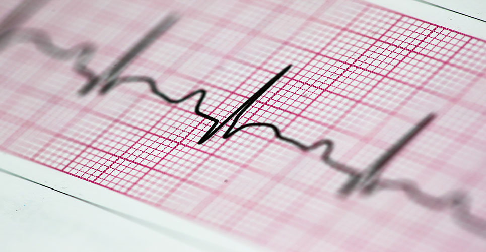 Treatment of cardiac tachyarrhythmias