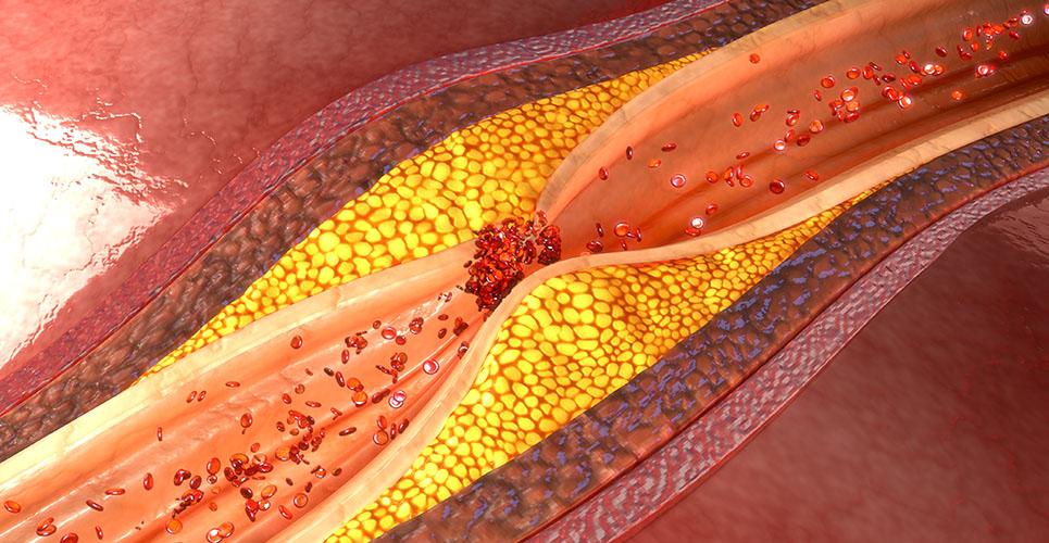 The role of antibiotics in coronary artery disease