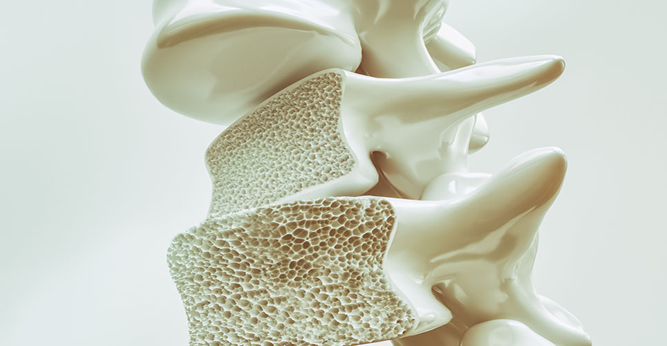 Osteoporosis and the new bisphosphonates
