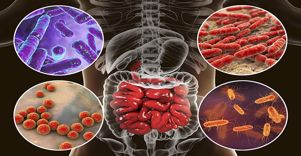 Probiotic functional food in gut disorders