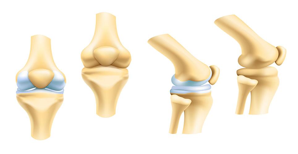 Anti-TNF inhibitors in rheumatoid arthritis