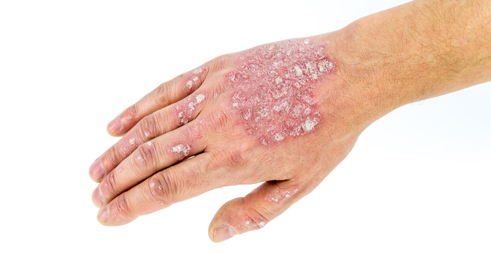 Janssen submits EMA application for the use of Guselkumab in moderate to severe plaque psoriasis