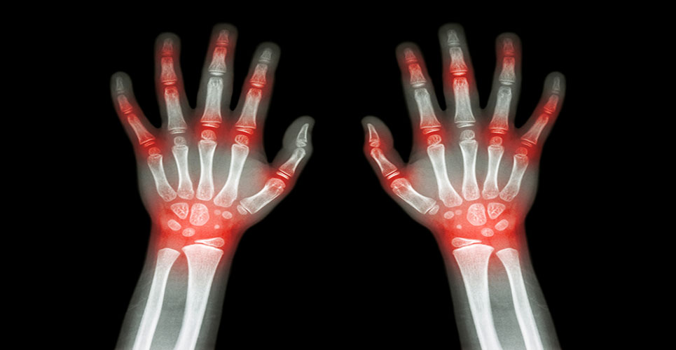 New data shows sirukumab improves the signs and symptoms of moderately to severely active rheumatoid arthritis