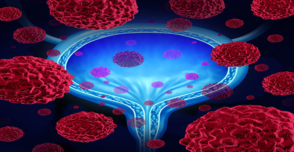 First major treatment advance in bladder cancer in three decades reimbursed for patient use