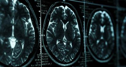 MRI_411x220px.jpeg