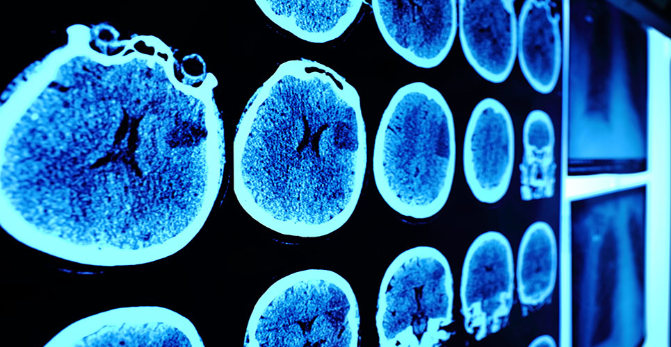 Radioimmunoconjugate therapy for B-cell NHL