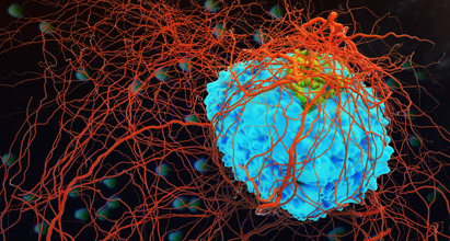 Bcl-2 antisense therapy in metastatic melanoma