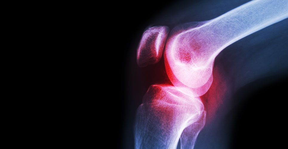 Does synovial fluid play a role in osteoarthritic pain?
