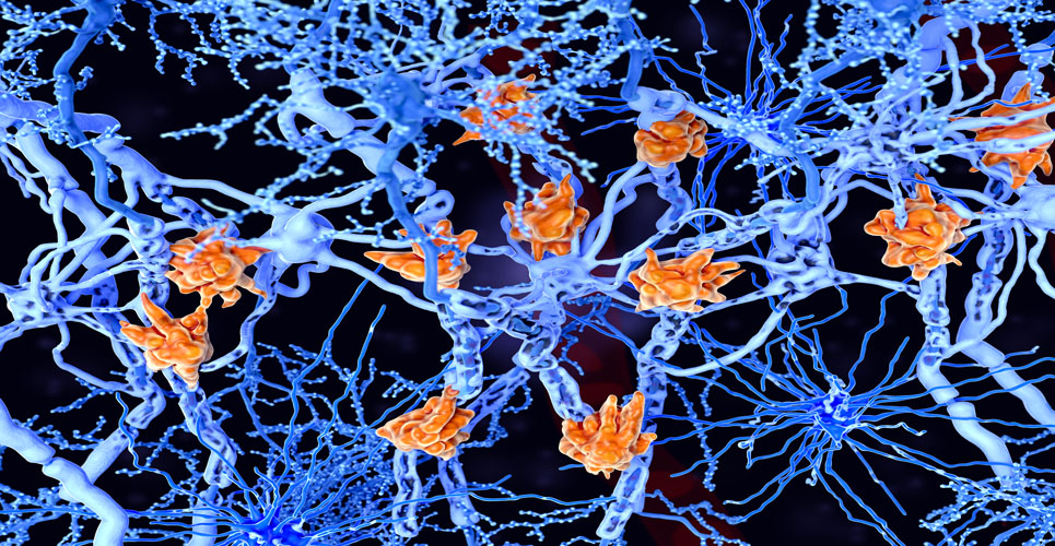 Siponimod may preserve mobility and brain volume in secondary progressive multiple sclerosis