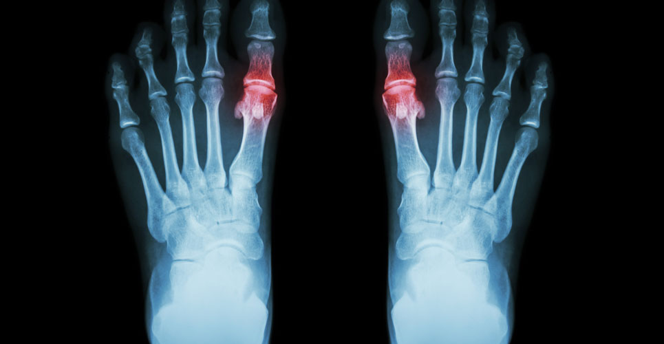 Potential new target for treatment of gout