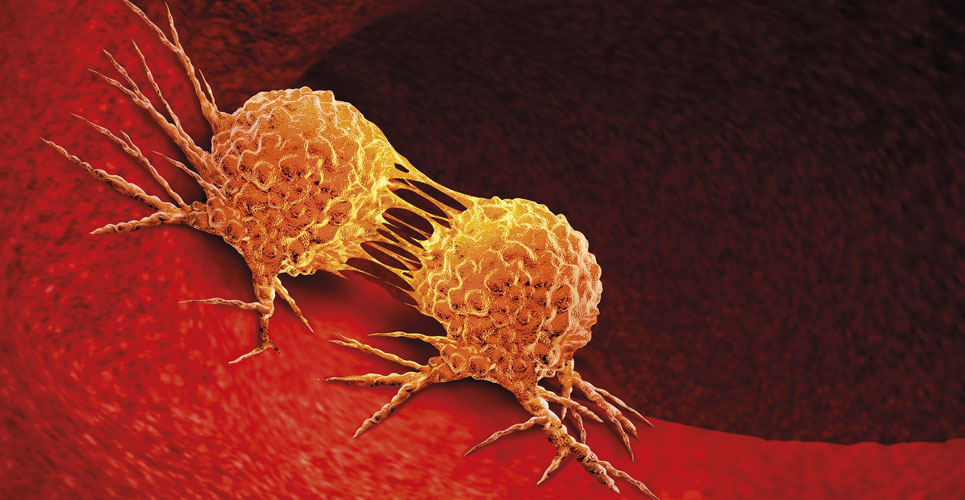 Screening and early detection of lung cancer