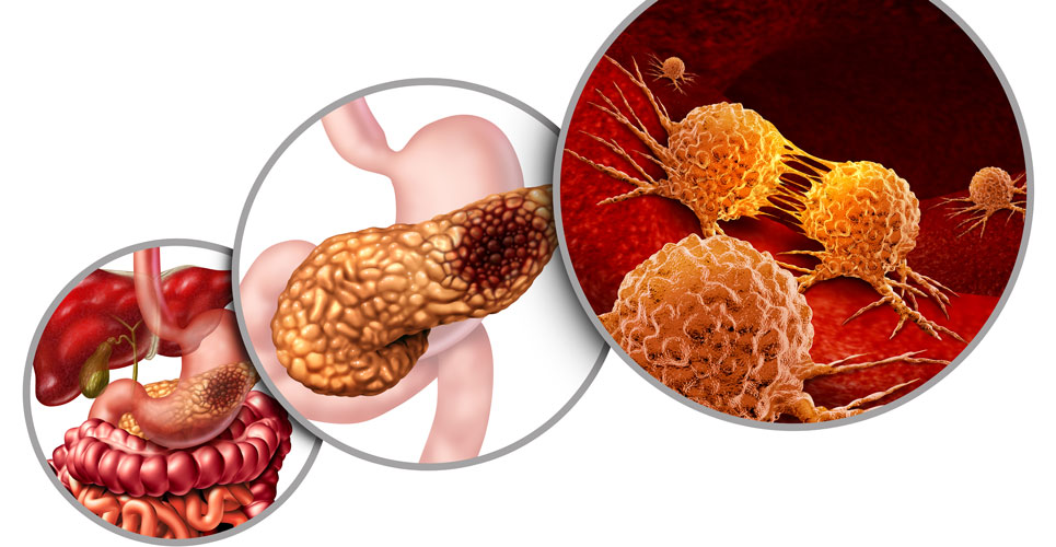 Expert view: Prioritising pancreatic cancer