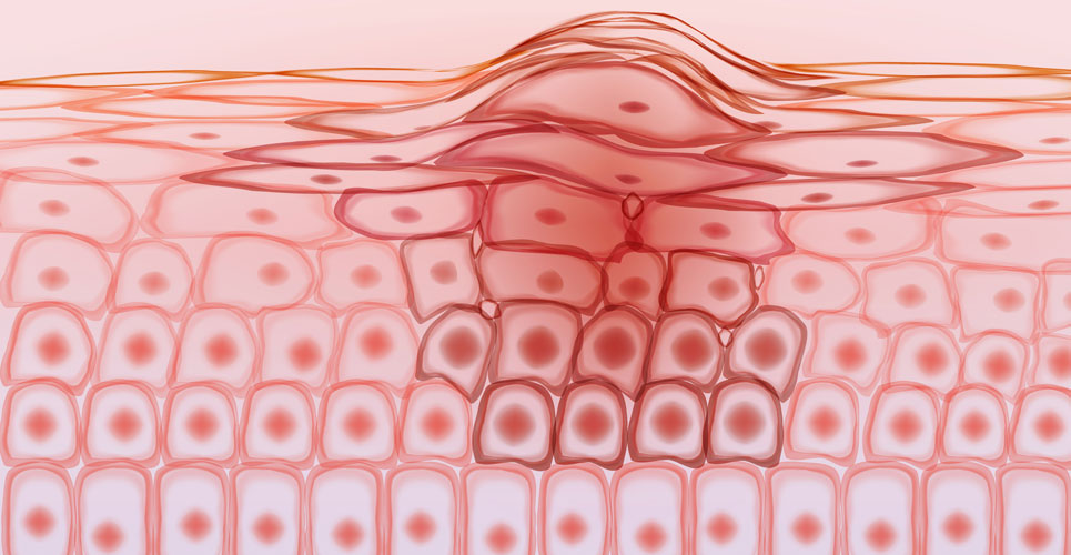 Vitamin D reduces the aggression in melanoma cells