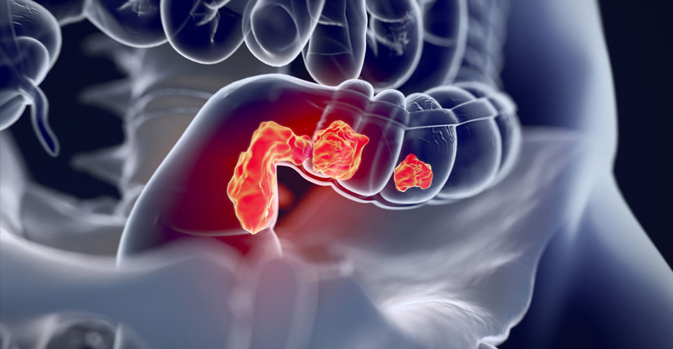 Shorter-course radiotherapy recommended for bowel cancer during pandemic
