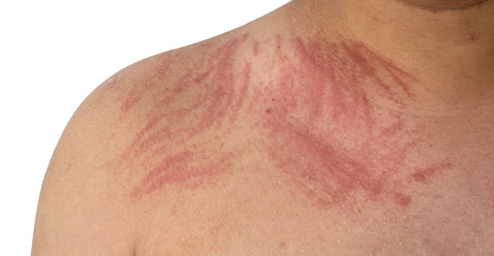 Commentary: IL-17 as a potential therapeutic target in chronic urticaria