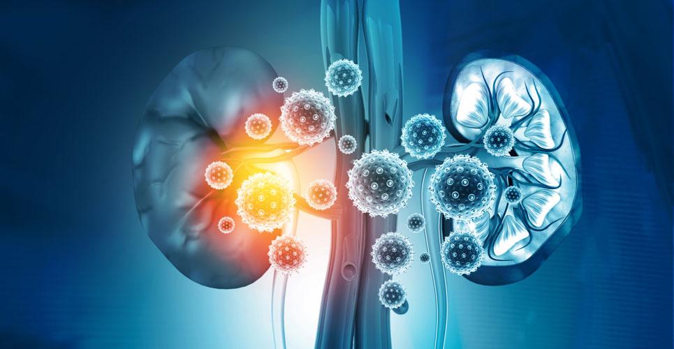 Acute kidney injury in hospital: COVID-19 rapid guideline summary