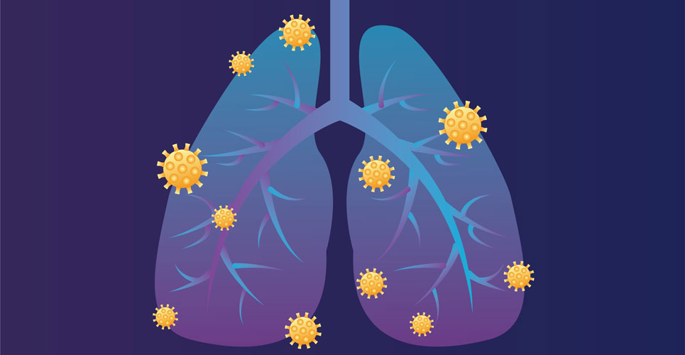 Are patients with asthma protected against COVID-19?