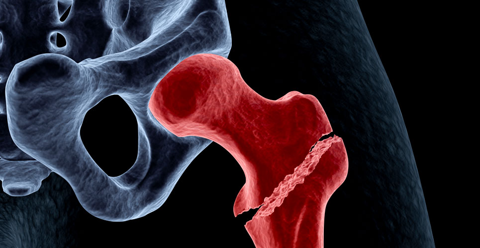 Long-term bisphosphonate therapy not associated with reduced risk of hip fracture