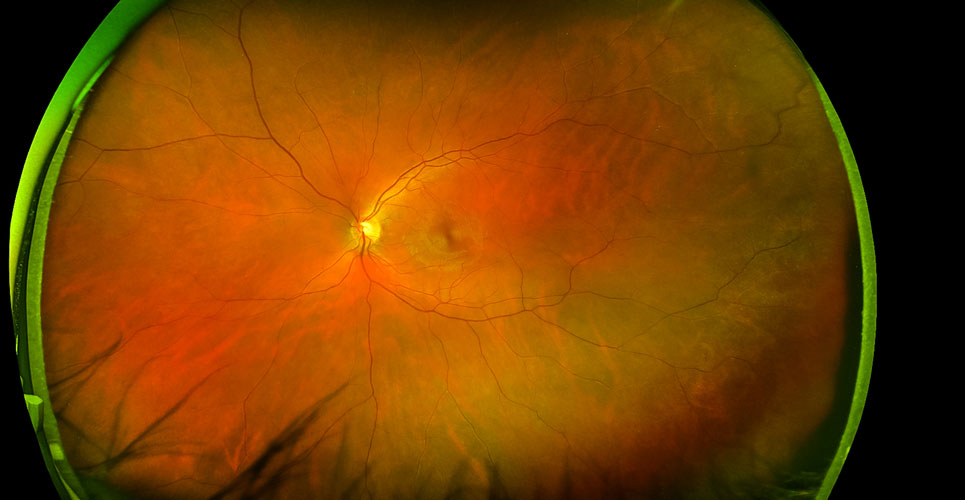 Non-invasive retinal imaging for assessment of cognitive dysfunction in type 1 diabetes
