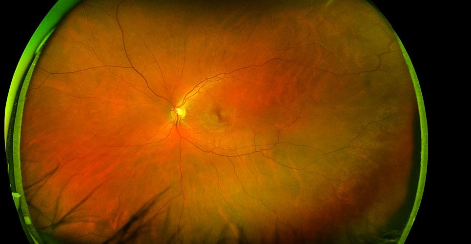 retinal imaging in diabetes