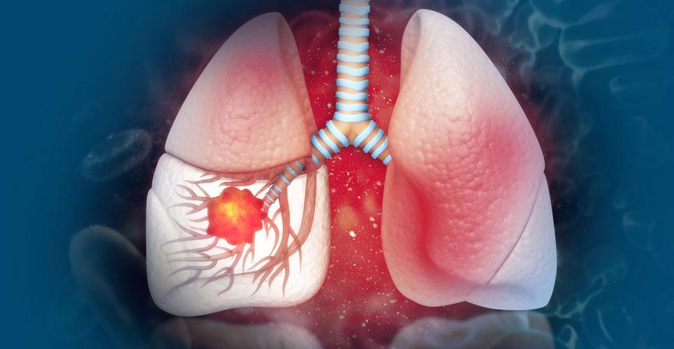 topinib lung cancer