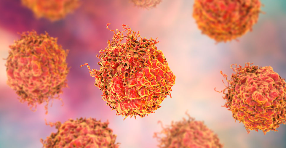 prostate cancer combination therapy