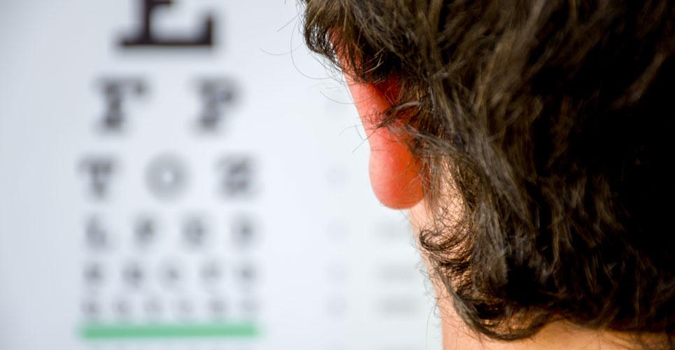 high refractive errors