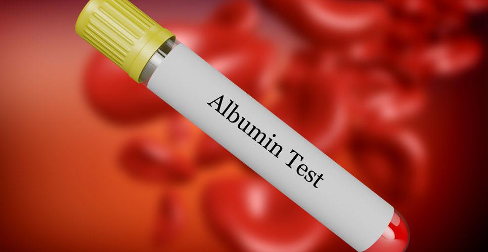 serum albumin